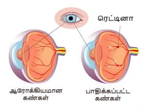Preserving Vision Diabetics