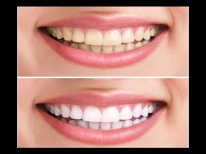 Reverse Gum Disease Whiten Teeth With This Homemade Toothp