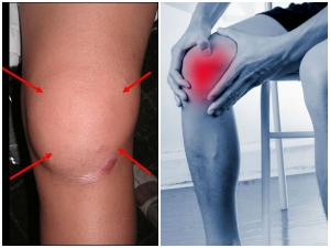 How To Use Egg Yolks Acv Ease To Ease Knee Pain Swelling Overnight
