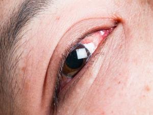 7 Reasons Your Eyes Are Bloodshot