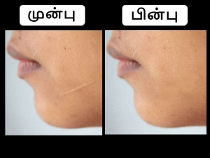 Make This Homemade Scar Removal Cream In Just 10 Seconds