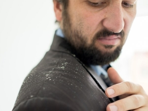 Simple Ways To Get Rid Of Dandruff In Men
