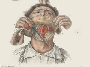 Terrifying Pictures Revealing Unbelievable Surgery Procedure Victorian Era
