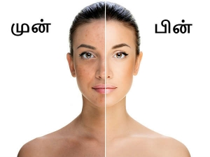 Simple Most Trusted Home Remedies For Hyperpigmentation