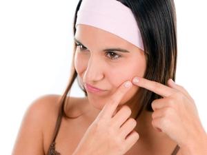 Face Masks Get Rid Pimples