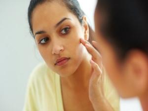 Unani Medicine Acne Treatment