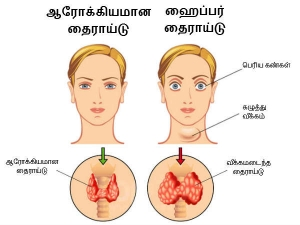 Natural Ways To Treat Hyperthyroidism