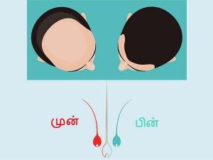 Ayurvedic Health Benefits Aavaaram Poo
