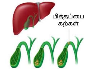 Gall Bladder May Increase Heart Diseases