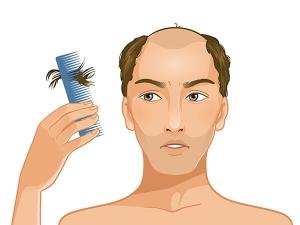 Does Masturbation Cause Hair Loss