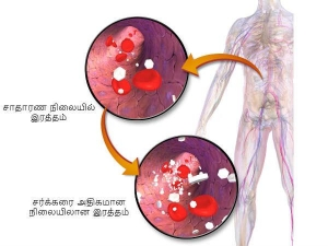 Ultimate Cure To Reduce Blood Sugar And Triglycerides