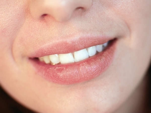 How Protect Lips Winter