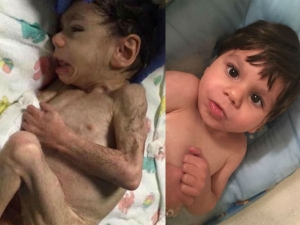 Mom Saves Starving Orphan Boy One Year Later He Looks Completely Unrecognizable