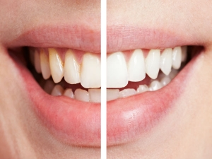 The Homemade Toothpaste That Whitens Teeth Heals Cavities Gum Disease