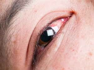 Reasons Your Eyes Are Bloodshot