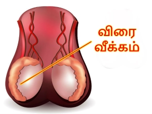 Managing Enlarged Male Genitals Is It Normal Ejaculate Through Scrotal Porous