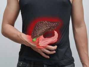 Powerful Chinese Treatment Remove Gallstones Just 7 Days