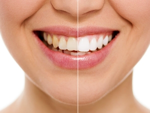 The Most Frequently Asked Questions On Oral Health