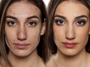 Best Home Remedies To Treat Oil Bumps On The Face