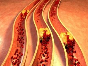 How Peanuts Will Help Improve Heart Health