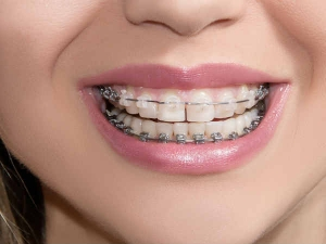 5 Habits That Make Living With Braces Easier
