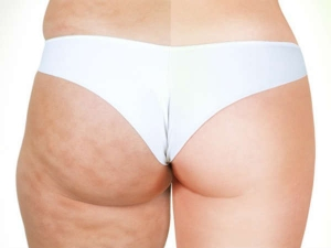 Things That Are Giving You Ugly Cellulite