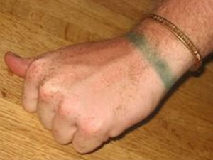 Health Warning What Exactly Does Copper Bracelet Turning Green Means