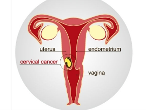Causes And Prevention Of Cervical Cancer