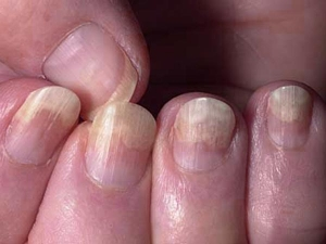 Common Causes Of Yellow Nails
