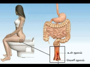 How To Get Rid Of Hemorrhoids With This Natural Remedy