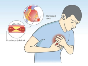 Painkillers Could Lead Heart Attack Risk