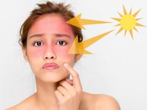 Best Home Treatment For Sun Damaged Skin