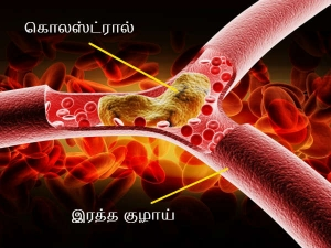 Special Rice Milk Porridge Reduce The Cholesterol Level Body