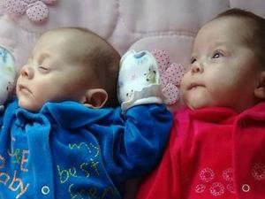 Brain Dead Mother Gave Birth Twins