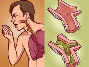 Garlic Onion Recipe Cure Against Cough