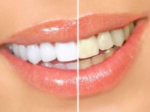 Tips Overcome Teeth Decay
