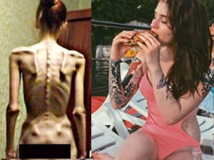 How Strict Diet Changed The Lifestyle A Teen Girl Awareness