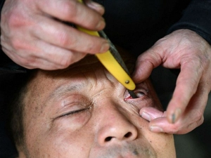 A Chinese Man Cleaning Eyes With Sharp Blade