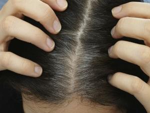 Natural Home Remedies Get Rid Grey Hair