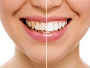 How Whiten The Teeth
