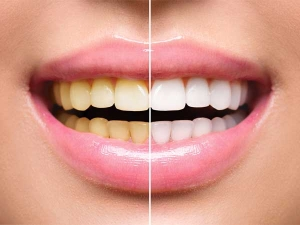 Activated Charcoal Capsules Teeth Whitening