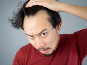 Effective Home Remedies Baldness