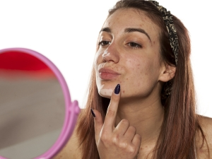 Amazing Steam Facial Pimples Oily Skin