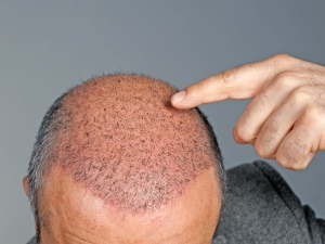 Hair Transplantation Is Only Permanent Solution Baldness