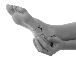 How Get Ride Cracked Heels Naturally