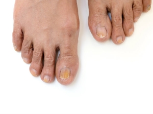 Symptoms Athlete S Foot Remedies Cure
