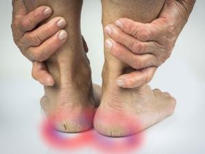 Home Remedies Cracked Heels