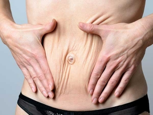 Tips Tighten Loose Skin After Pregnancy