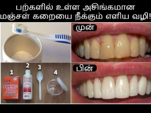 Whiten Your Teeth And Get Rid Of Plaque Without Expensive Treatment