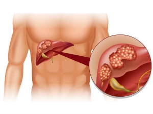 Superfoods For Liver Infection